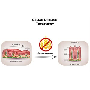 Diagram showing impact of celiac disease on small intestine