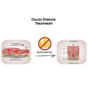 Diagram showing impact of celiac disease on small intestine