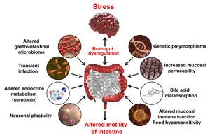 Pathophysiology of irritable bowel syndrome chart