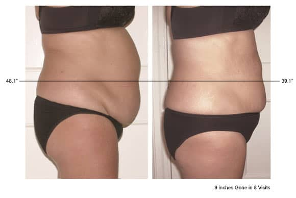 Before and after images of belly reduction using Vevazz